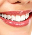 Зубные импланты: мифы и реальность